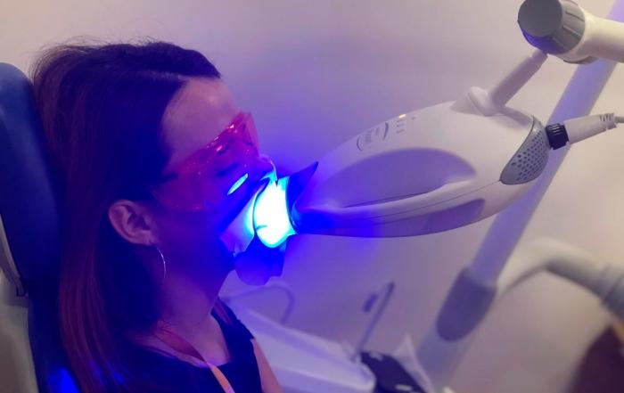 oferta-blanqueamiento-dental-castellon