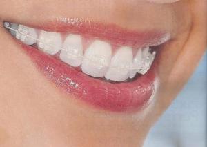 Promo-ortodoncia-julio