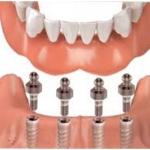 detalle-implantes
