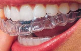 ortodoncia_invisible2-400x400