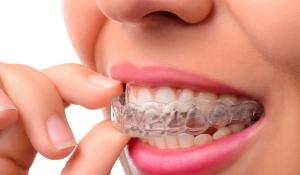 ortodoncia-invisible-invisalign-olga-casorran